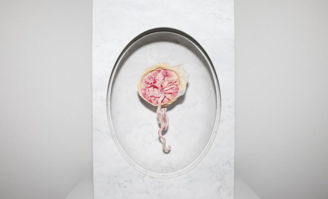 A placenta da artista Zoë Buckman na exposição 'Present Life' (2015)